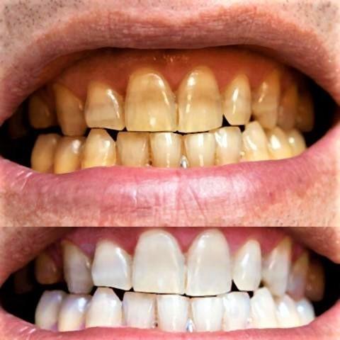 pict-歯歯歯の歯.jpg